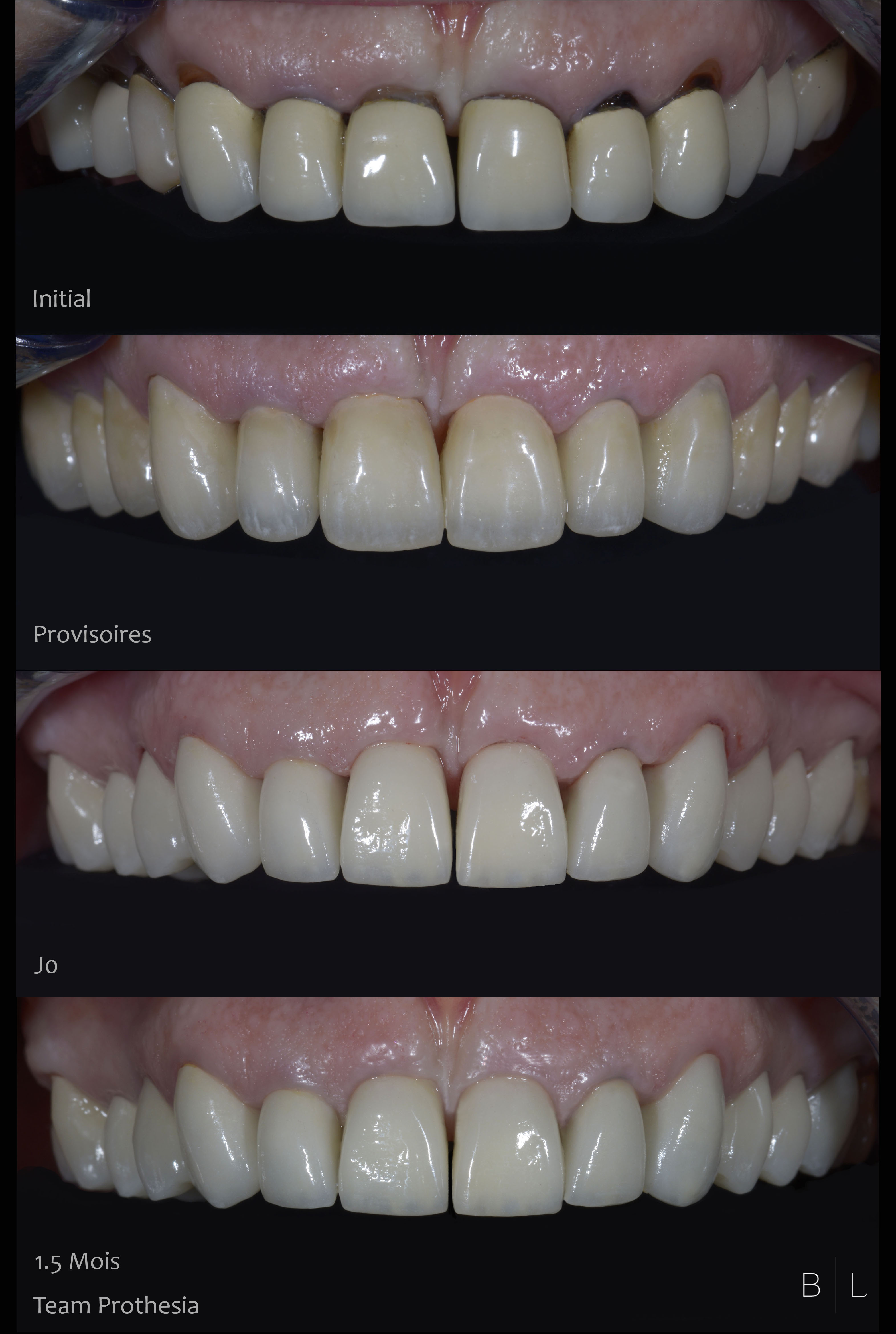 8-integration-gingivale-dentistes-antibes