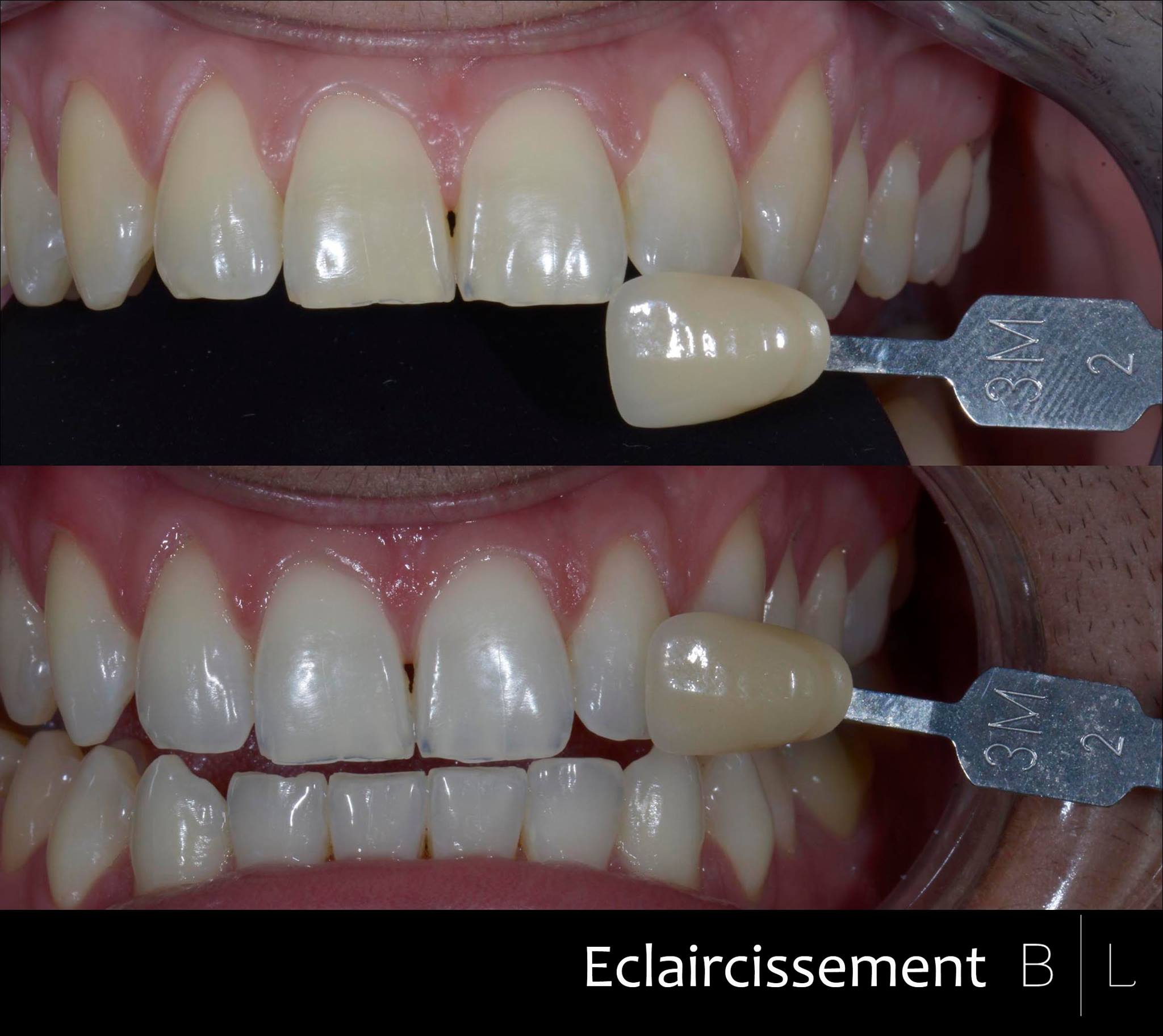 bleaching-eclaircissement-dentaire-antibes