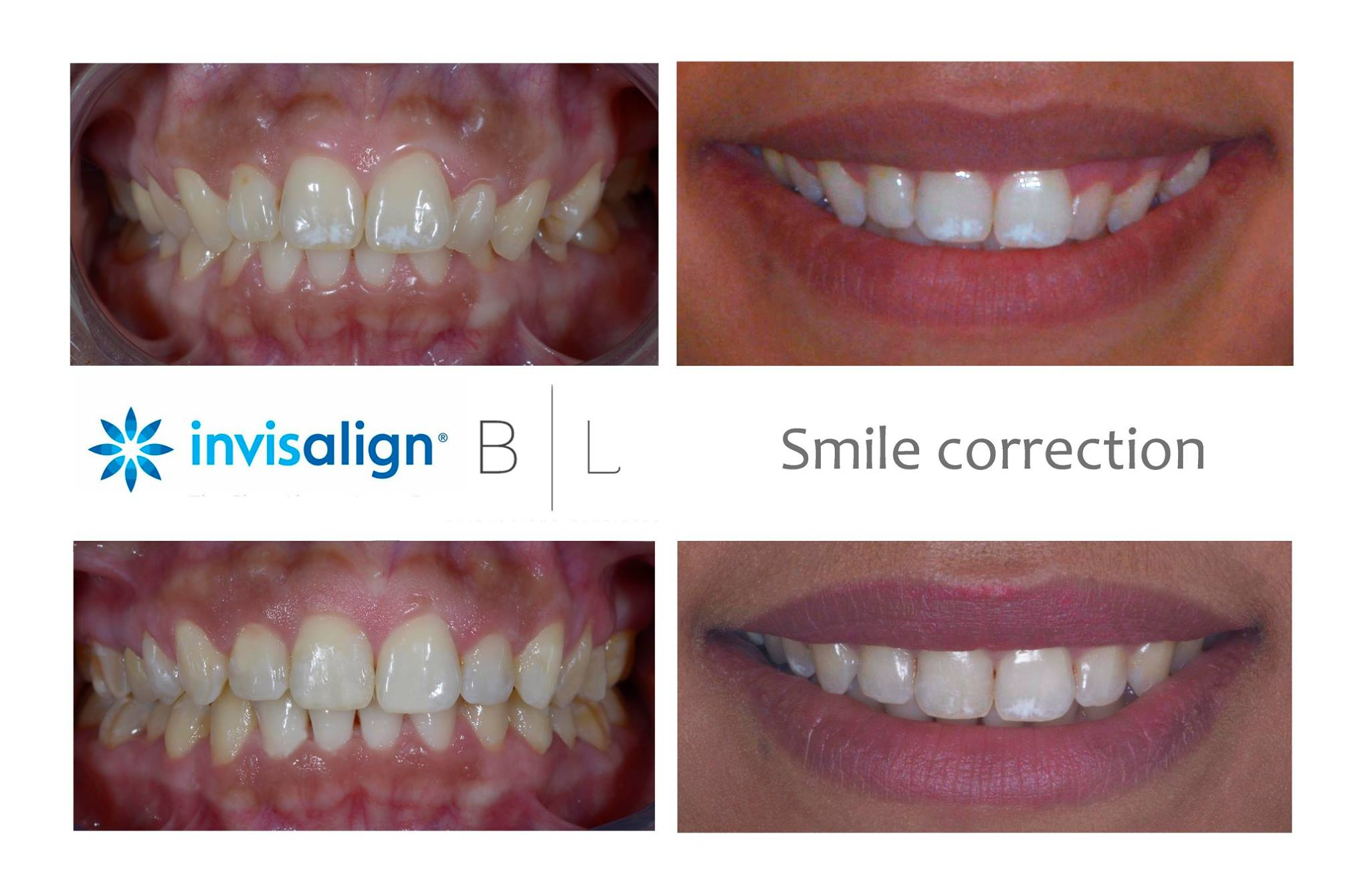 invisalign-dentiste-antibes-06