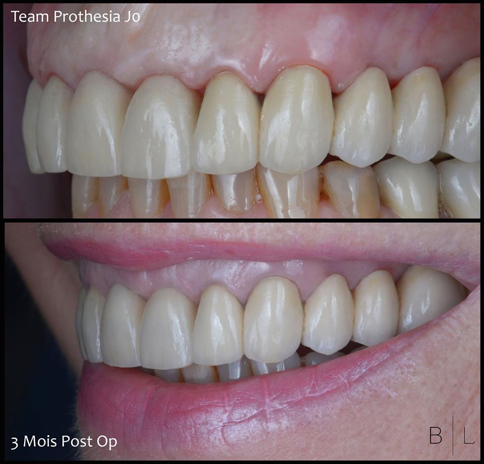 invisalign-france-06-antibes-dentiste