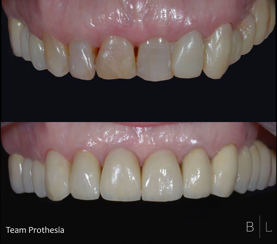 invisalign-france-dentiste