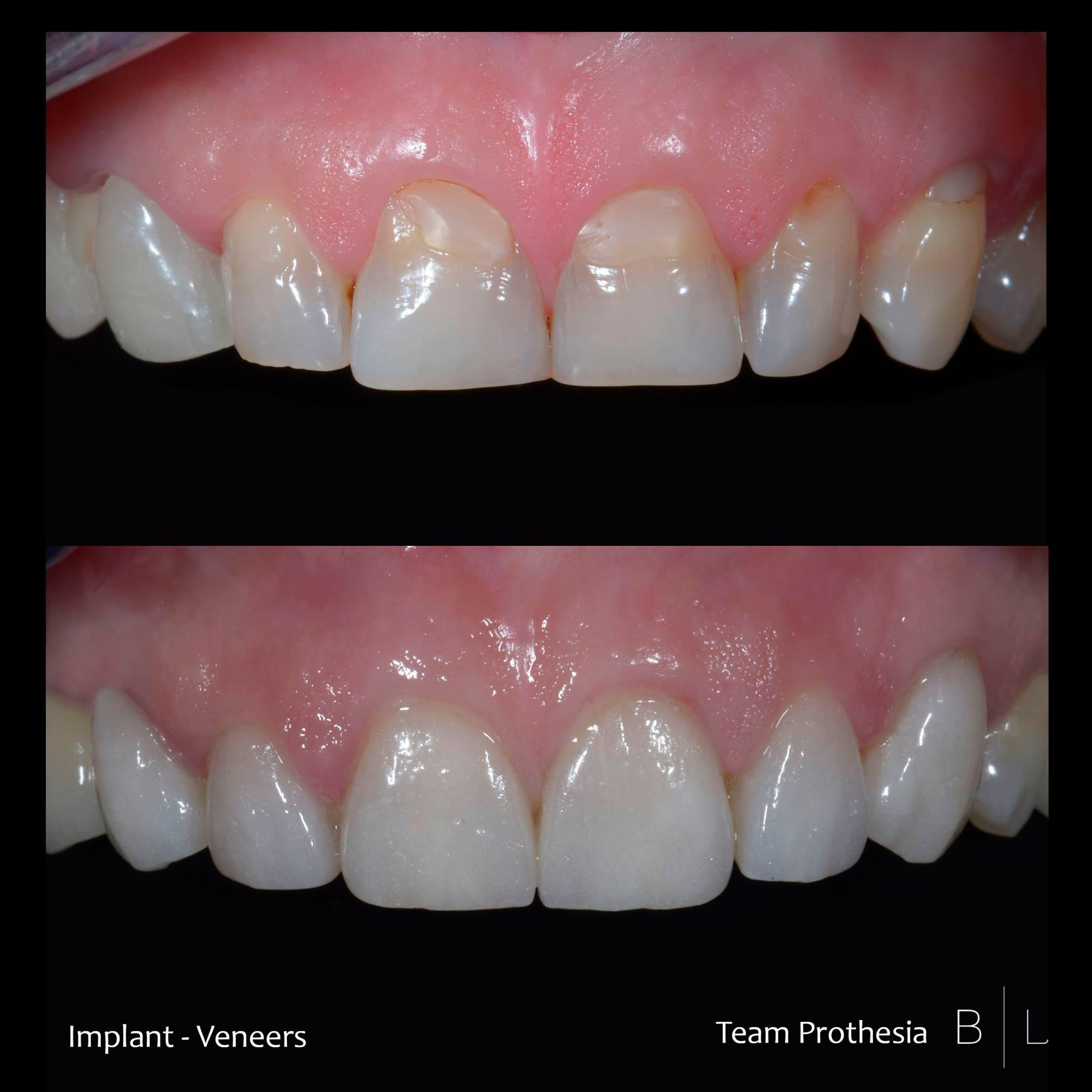 veneers-implant-antibes-dentiste
